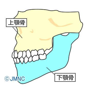 上顎骨が前突 / 下顎骨が後退すると、骨格要因の出っ歯になります。