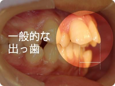 一般的な出っ歯