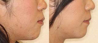 矯正治療前後写真(横顔・抜歯あり)