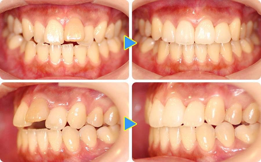 出っ歯を部分矯正で治療した症例前後写真