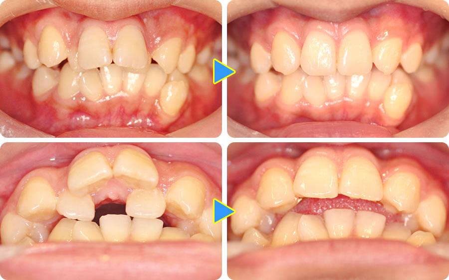 出っ歯を抜歯と部分矯正で治した症例