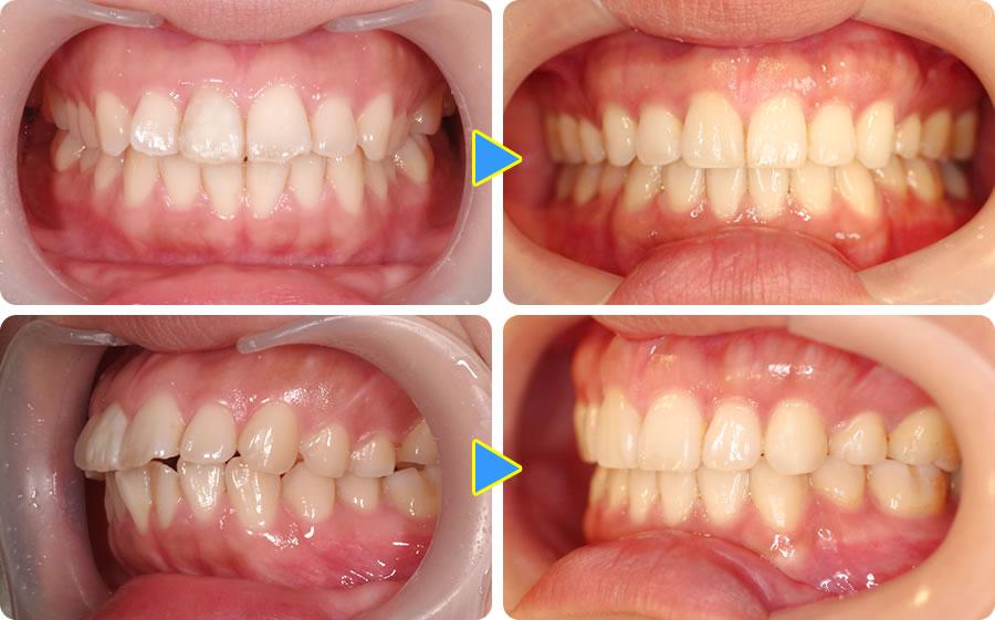全顎矯正で出っ歯を直した症例