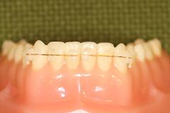 表側矯正装置の写真です。写真のワイヤーはゴールドを使用していますが、他にも白・シルバーを使用しています。歯の色に一番近いものを選んで使用しています。
