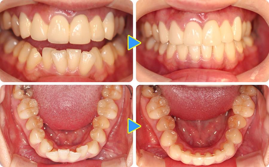 下の前歯を部分矯正した症例