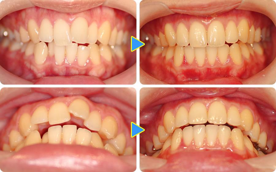 上下の前歯を部分矯正した症例