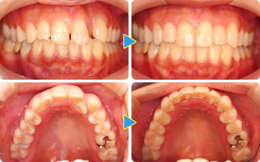 奥歯も部分矯正した症例前後写真