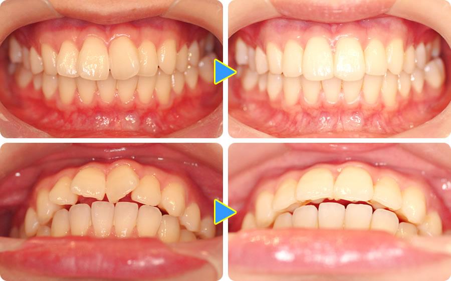前歯だけ歯並びを治す部分矯正の...