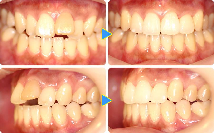 前歯の前突を部分矯正したケース