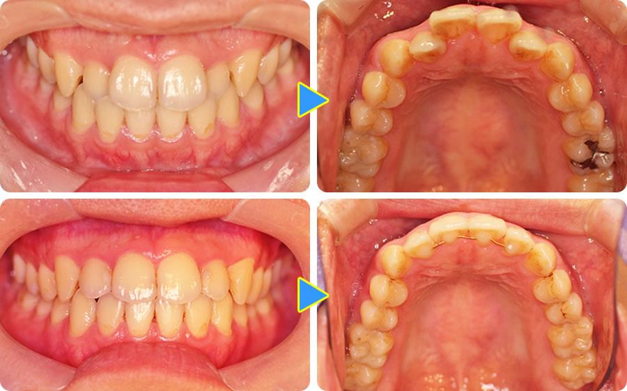 左上2右上2の舌側傾斜を部分矯正したケース