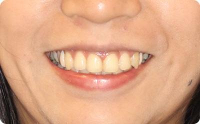 八重歯治療6か月後・顔貌写真