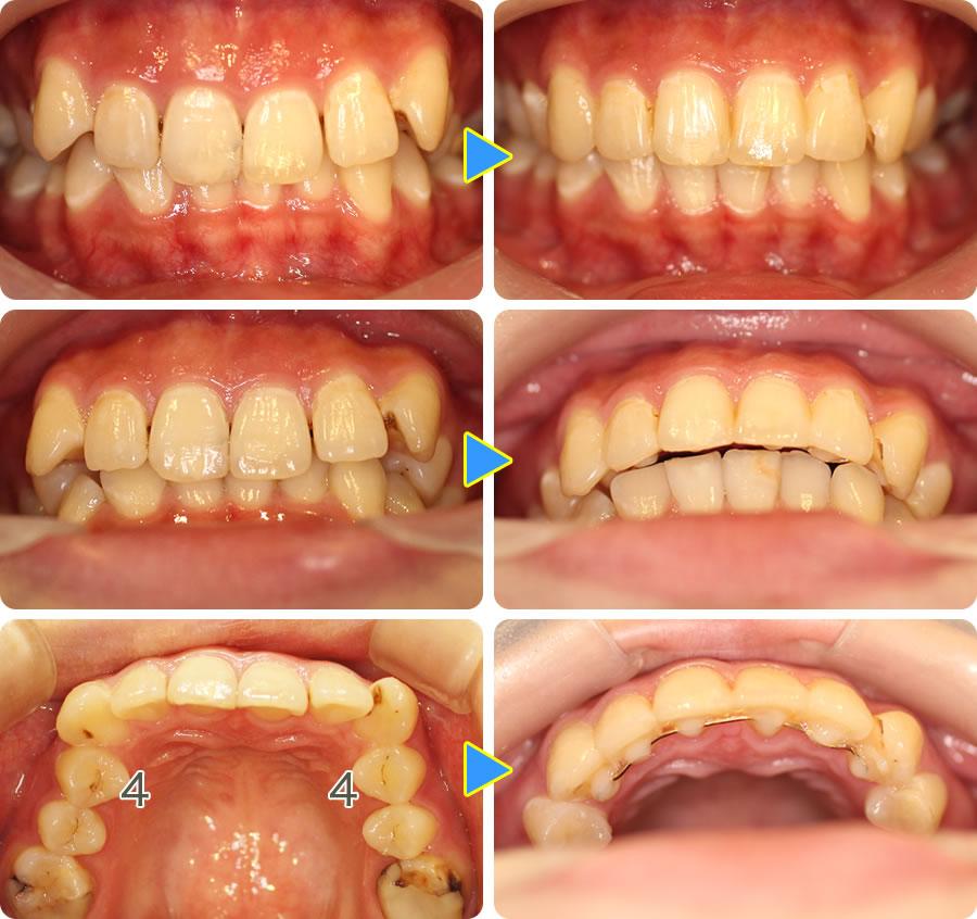八重歯を部分矯正治療前後写真